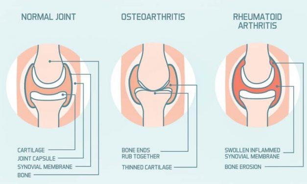 Dwa oblicza artretyzmu
